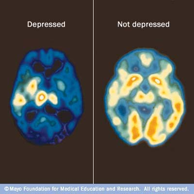 a discussion on depression Related boards: share your depression story, depression tips, depression, mental health, (see also boards by health category) board index : click here to find threads on depression by keywords and phrases.